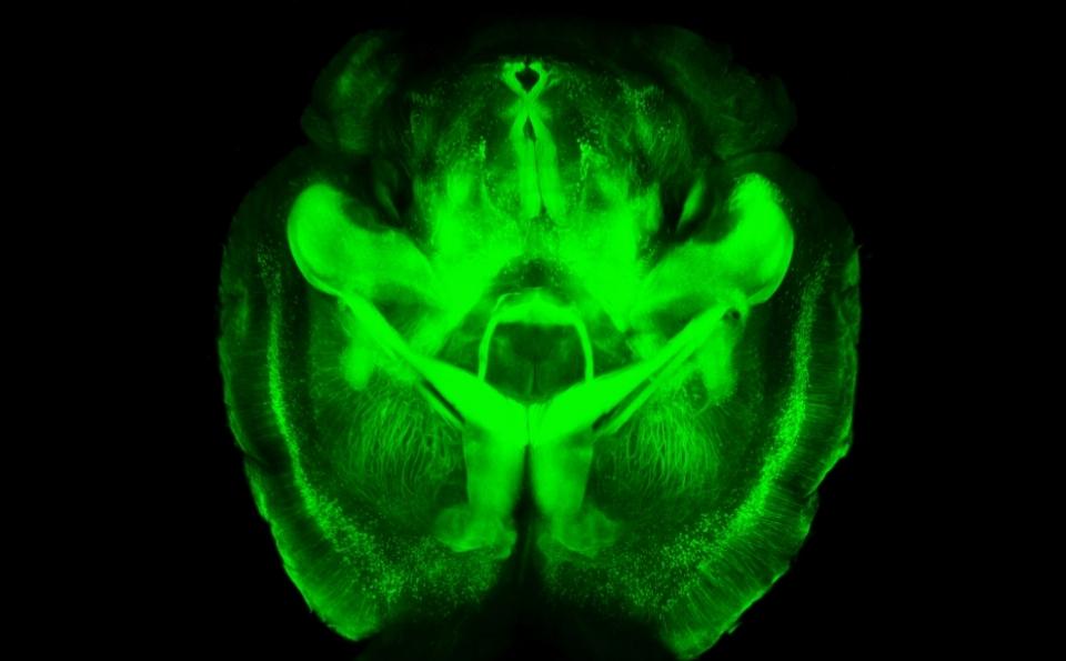 Una ventana al cerebro