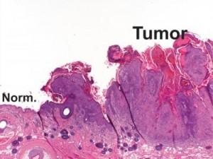 Comparación de una célula sana con otra afectada por un melanoma.