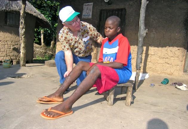 Ruiz-Tiben, junto a un niño nigeriano con heridas por el gusano de Guinea