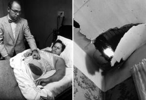 Hematoma de Ann Elizabeth Hodges tras ser golpeada por un meteorito