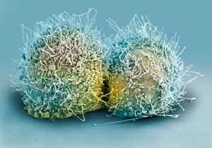 HeLa-cells-dividing-1