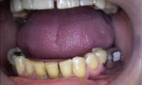 Muela inteligente implantada en un enfermo de párkinson