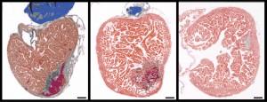 Regeneración del corazón de un pez cebra, desde el infarto hasta el día 130