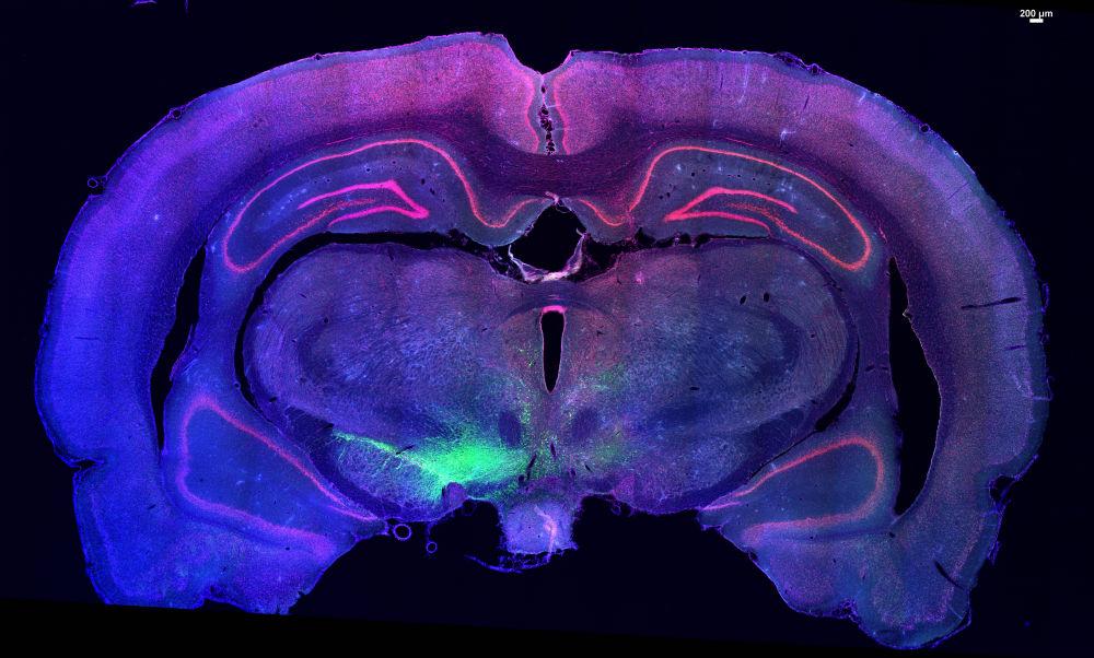 Vias dopaminergicas
