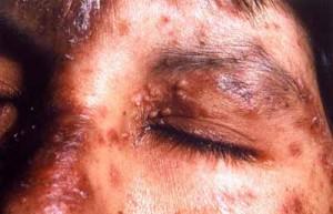 Rostro de un paciente con histoplasmosis asociada al sida en Buenos Aires
