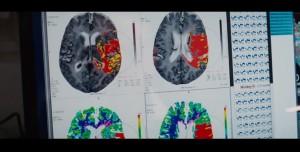 Fotograma de la película con una diapositiva real de José Carmena mostrando cerebros de macacos