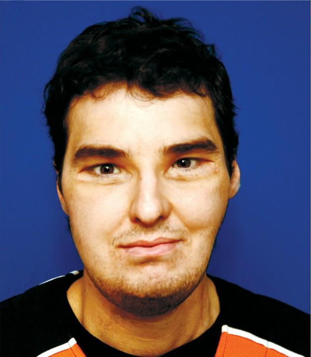 Richard Norris recibió un trasplante completo, incluidos huesos, en una operación realizada por Eduardo Rodríguez. La foto se realizó 16 meses después de la intervención.