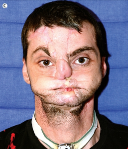 Richard Norris, antes de la operación.