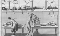 Ilustración de uno de los experimentos de Giovanni Aldini.